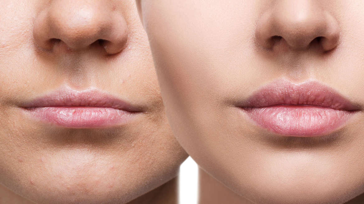Thinking About Investing in Botox| Dysport in Coconut Creek?