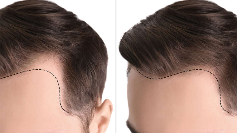 Don't Let Thinning Hair Get Your Down