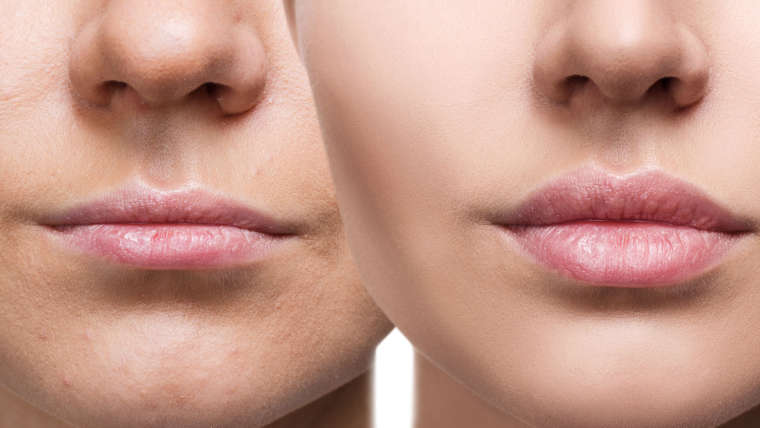 Plump up the Volume with Dermal Fillers in Coconut Creek