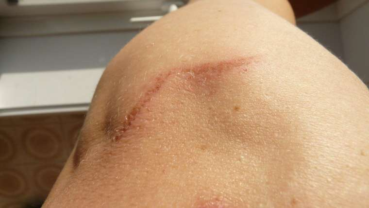 East West Physicians of Coconut Creek Can Help You  Reduce the Scars